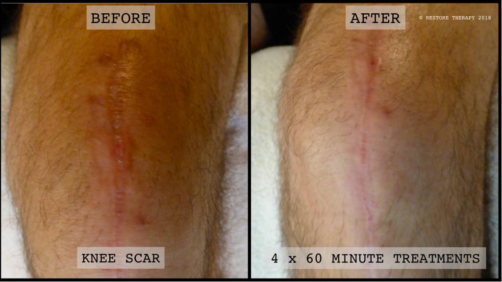 Knee Replacement Scar Treatment