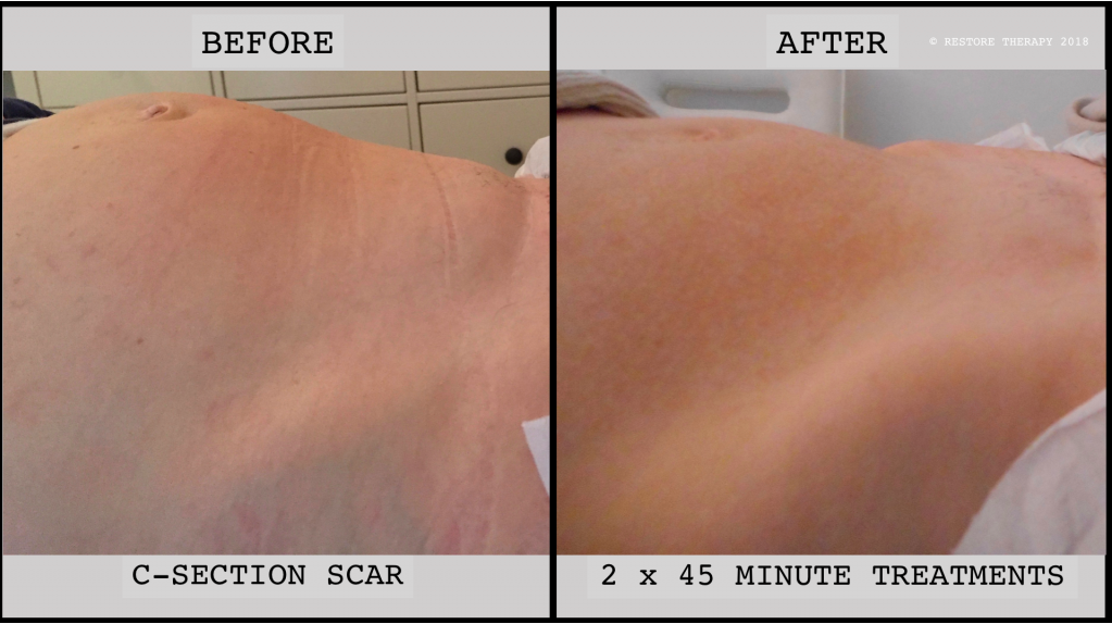C-Section Scar Therapy