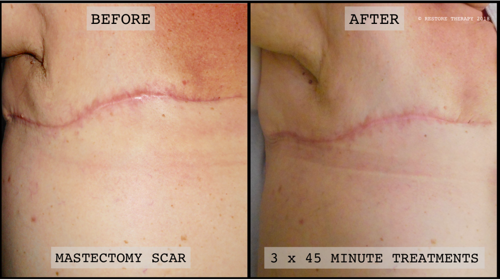 mastectomy scar treatment