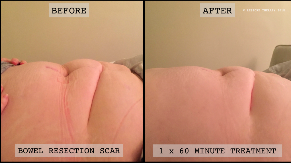 Bowel Resection Scar Therapy