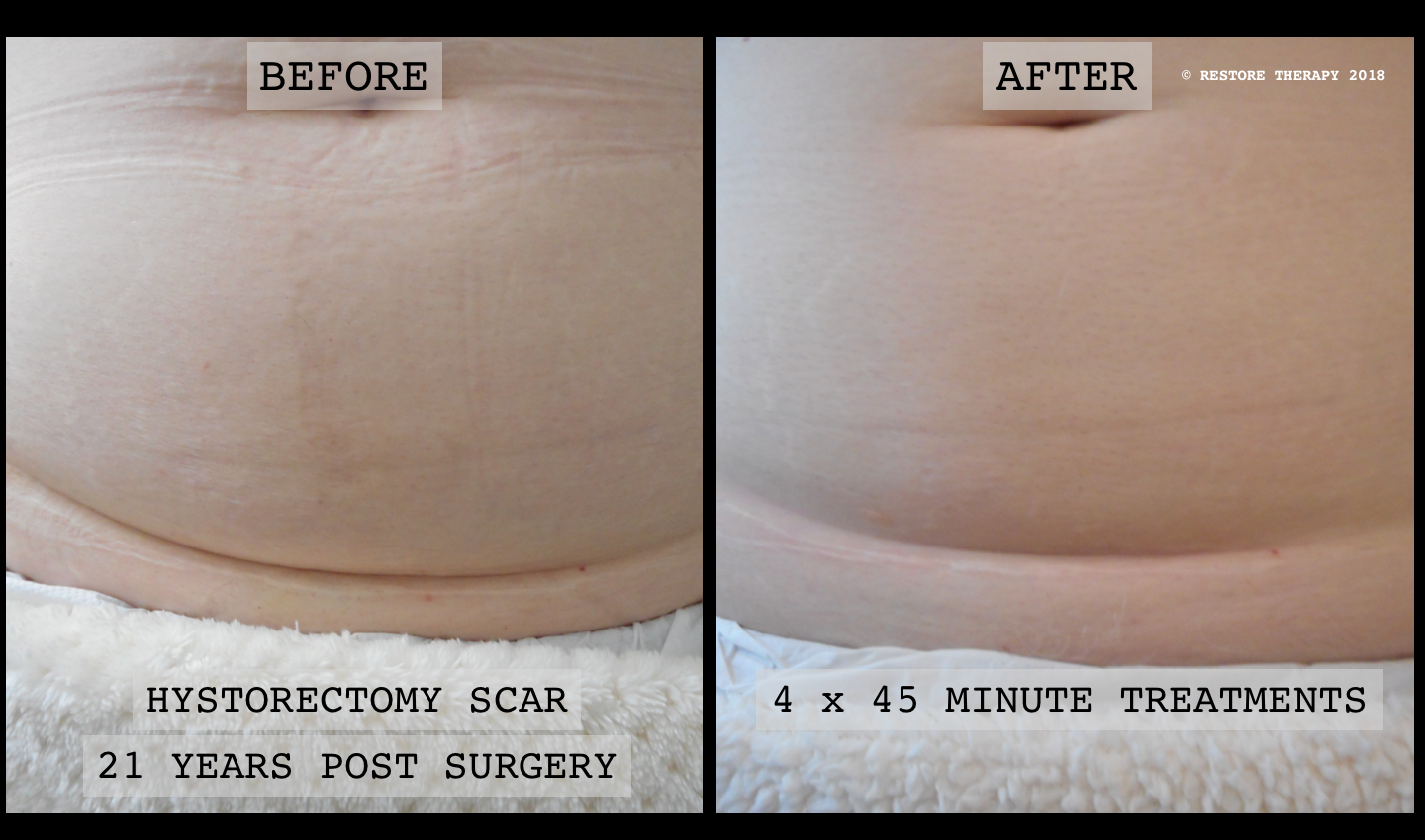 BEFORE AND AFTER HYSTERECTOMY SCAR TREATMENT